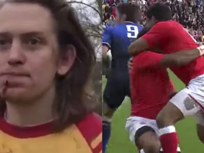 Rugbypelaajan kasvoissa karmiva reikä. Rugbyn ykkösdivisioonajoukkue Medway RFC julkaisi Twitterissä videon pelottavasta tilanteesta.