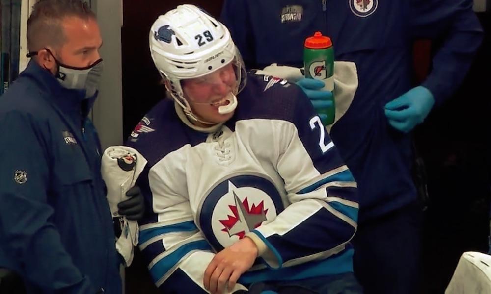 Patrik Laineen tilanne huolestuttava, kuten myös Mark Scheifelen: molemmat joutuivat jättää Calgary Flames -ottelun kesken.
